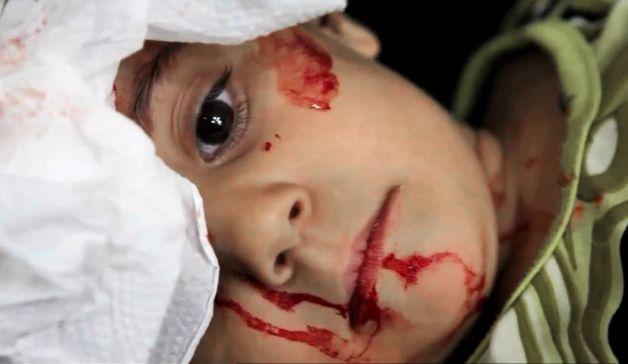 ÇOCUKLAR: Suriyede En Çok Onlar Ölüyorlar! 5