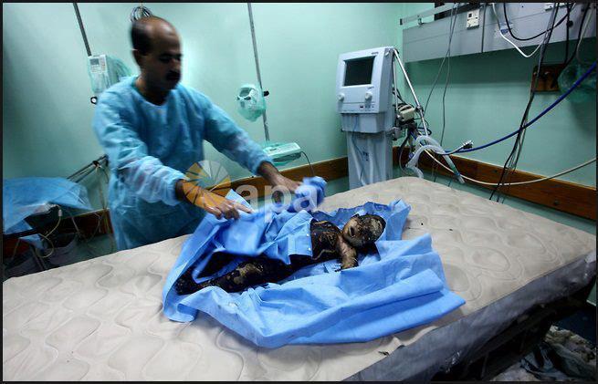 İsrail Gazzeyi Vurdu; Kassam Komutanı da Şehitler Arasında! 7