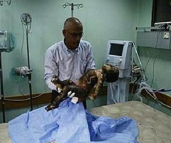 İsrail Gazzeyi Vurdu; Kassam Komutanı da Şehitler Arasında! 8