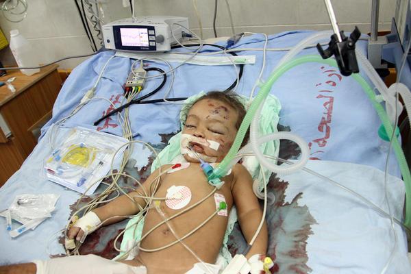 Gazze Katliamından Yansıyanlar 14