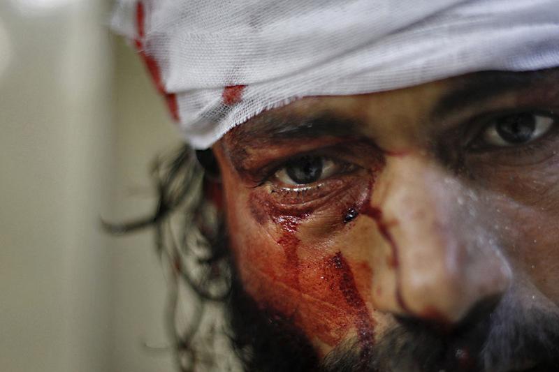 Fotoğraflarla Suriye'de Direniş ve Esed Zulmü 14