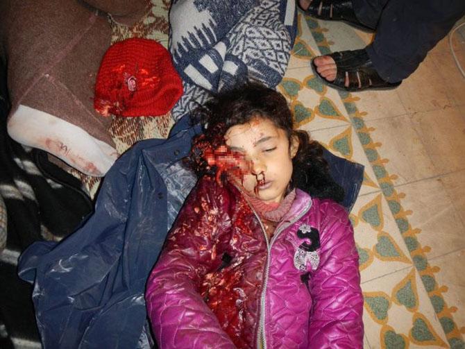 (+18) Humus-Kerem Zeytunda Yaşanan Katliamın Görüntüleri 1