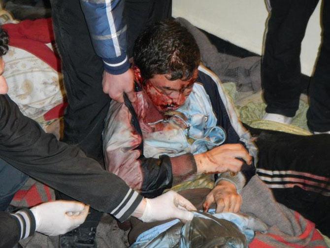 (+18) Humus-Kerem Zeytunda Yaşanan Katliamın Görüntüleri 11