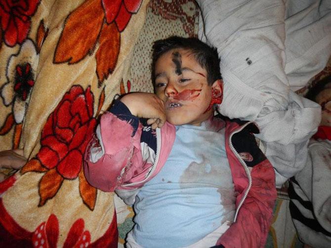 (+18) Humus-Kerem Zeytunda Yaşanan Katliamın Görüntüleri 13