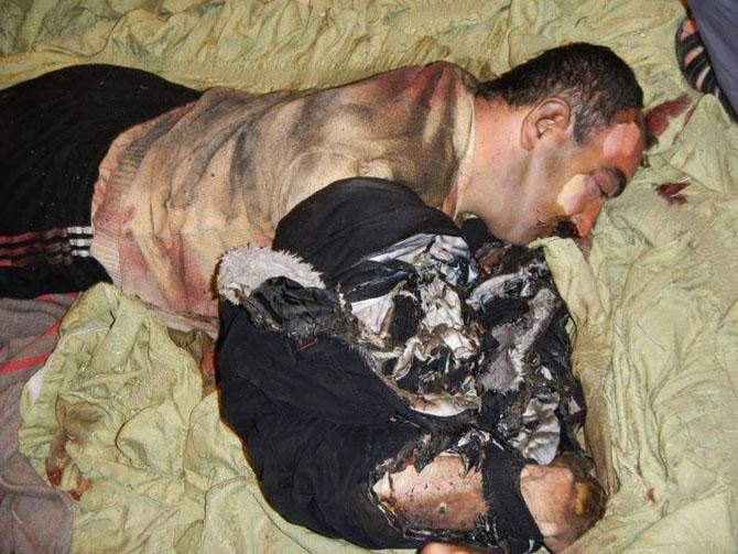 (+18) Humus-Kerem Zeytunda Yaşanan Katliamın Görüntüleri 15