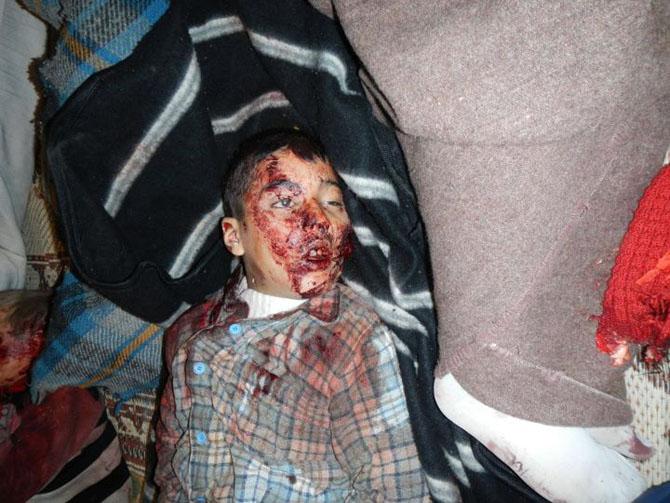 (+18) Humus-Kerem Zeytunda Yaşanan Katliamın Görüntüleri 17