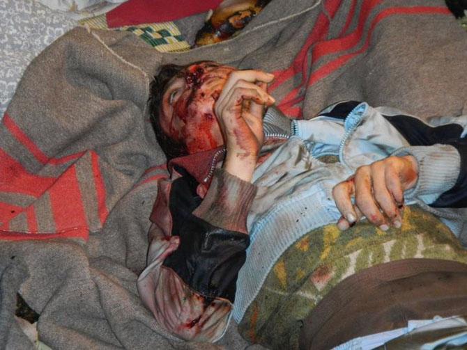 (+18) Humus-Kerem Zeytunda Yaşanan Katliamın Görüntüleri 20