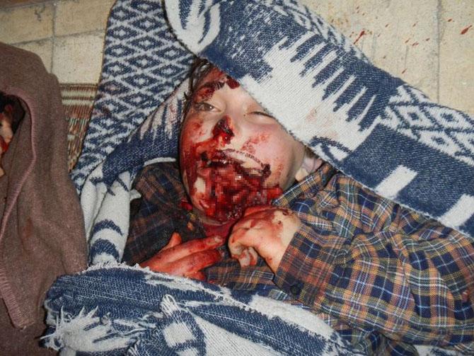 (+18) Humus-Kerem Zeytunda Yaşanan Katliamın Görüntüleri 28