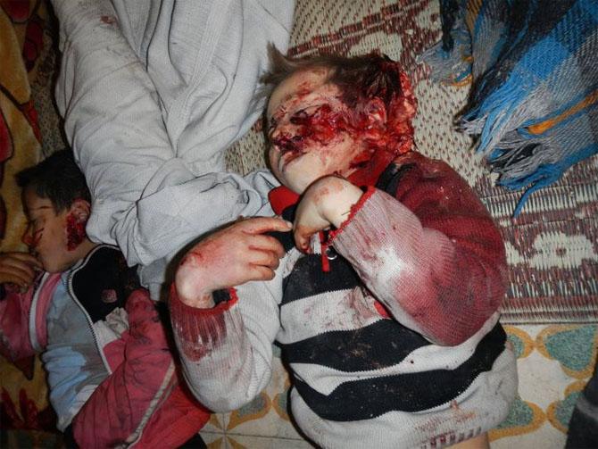 (+18) Humus-Kerem Zeytunda Yaşanan Katliamın Görüntüleri 4
