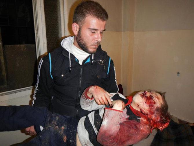 (+18) Humus-Kerem Zeytunda Yaşanan Katliamın Görüntüleri 9