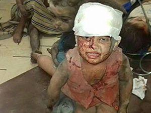 Rusya Halep'i Vurdu, Yine Çocuklar Öldü