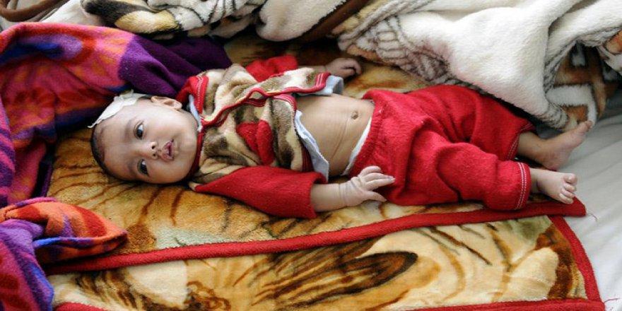 Yemen'de 10 Milyon Çocuk Acil Yardıma Muhtaç