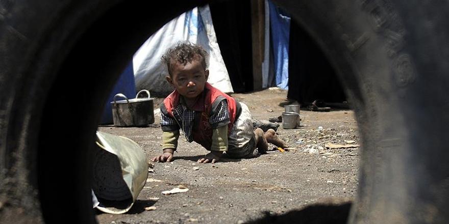 """""""Yemen'de 7 Milyon Kişi Açlık Tehlikesiyle Karşı Karşıya"""""""