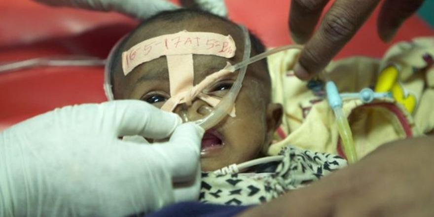 Bir Şampuan Şişesiyle Çocukların Hayatını Kurtaran Doktor