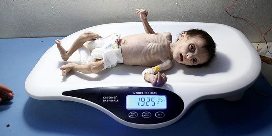 Gıdasızlıktan Ölen Suriyeli Bebeğin Son Anları!