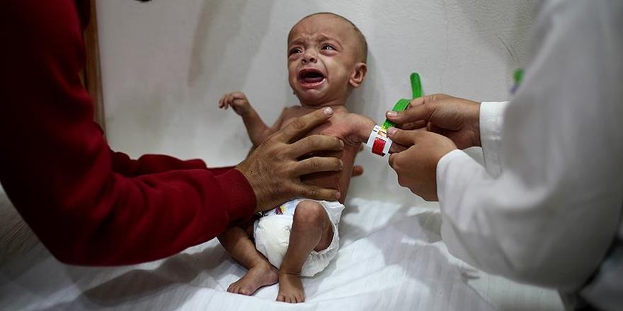 """""""Doğu Guta'da Yetersiz Beslenen Çocukların Sayısı Ürkütücü Boyutlarda"""""""