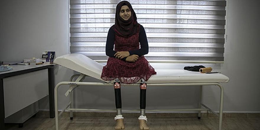 Suriyeli Öğretmen Protez Bacak Hayaline Kavuştu!