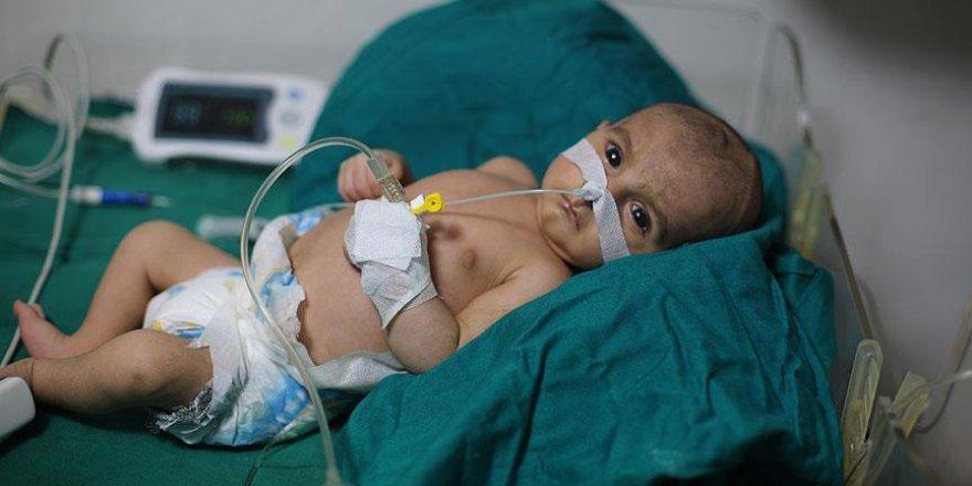 Doğu Guta'da Kuşatma Bir Bebeği Daha Öldürdü