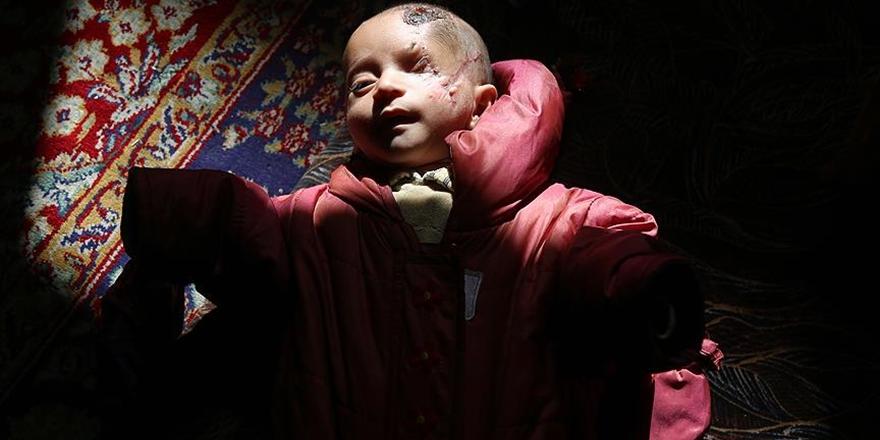 Doğu Gutalı Öksüz Bebeğin Mucizevi Direnişi Sürüyor!