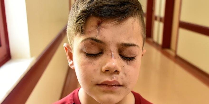Suriyeli Küçük Abdulmuin'e Umut Işığı