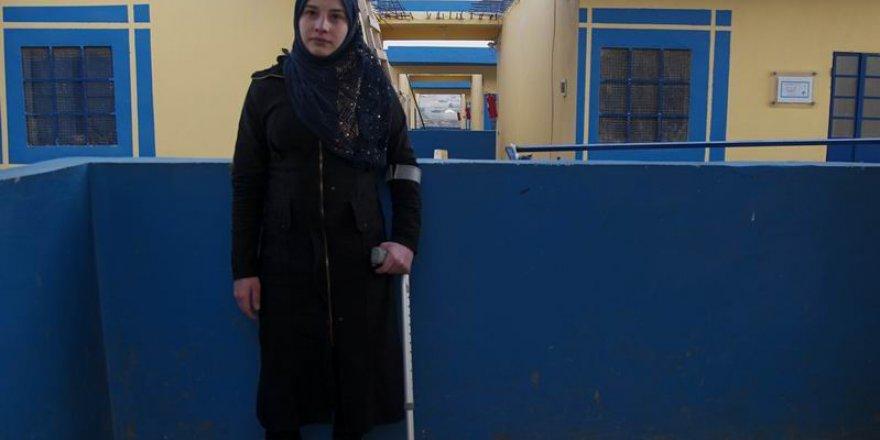 Suriyeli Öğretmen Fida Hasan Protezine Kavuştu