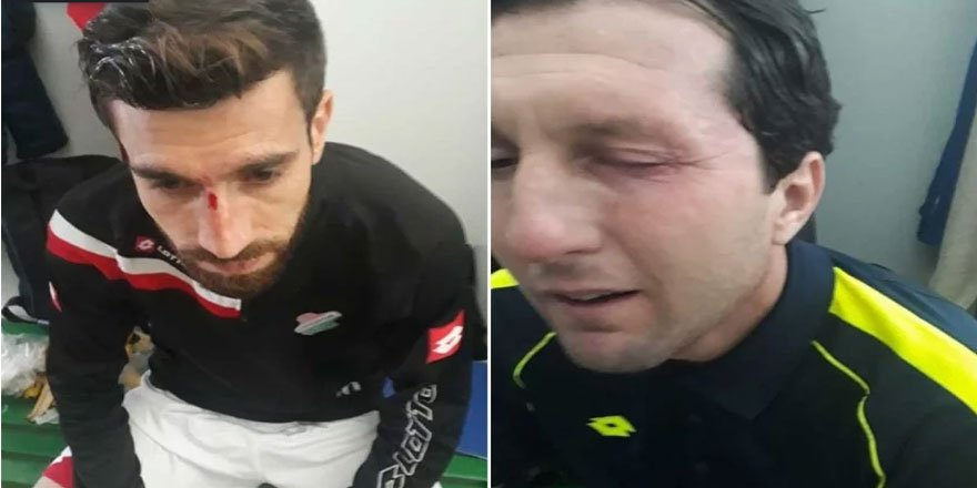 Cizresporlu Futbolculara Irkçı Saldırı
