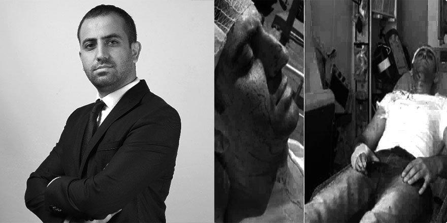 Murat Alan'a Saldıranların Siyasi Kimlikleri Tartışılıyor, MHP Suskun!