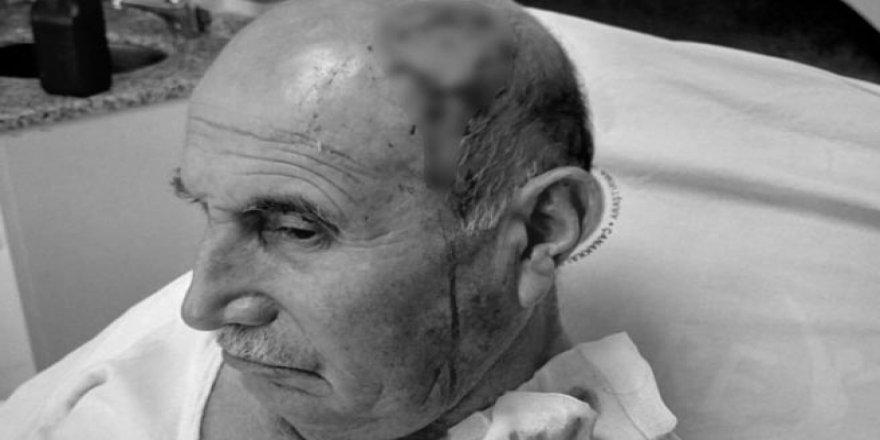 Kürtçe Konuşan Yaşlı Adama Hastanede Irkçı Saldırı!