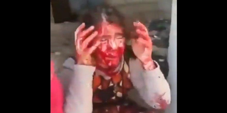 """Suriye'de Her Gün Duyulan Acı Bir Çığlık """"Annem ve Babam Yaşıyor mu?"""""""