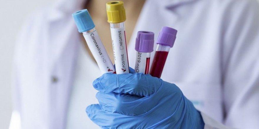 İran'da 2 Kişi Koronavirüsden Öldü