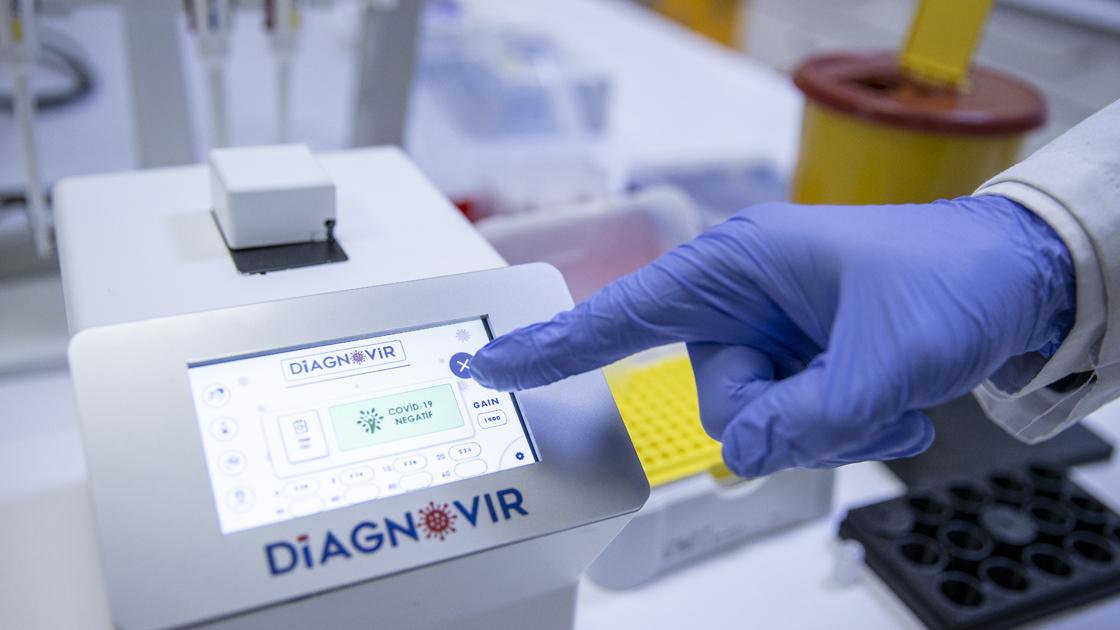 Koronavirüs teşhisini 10 saniyeye düşüren tanı sistemi geliştirildi