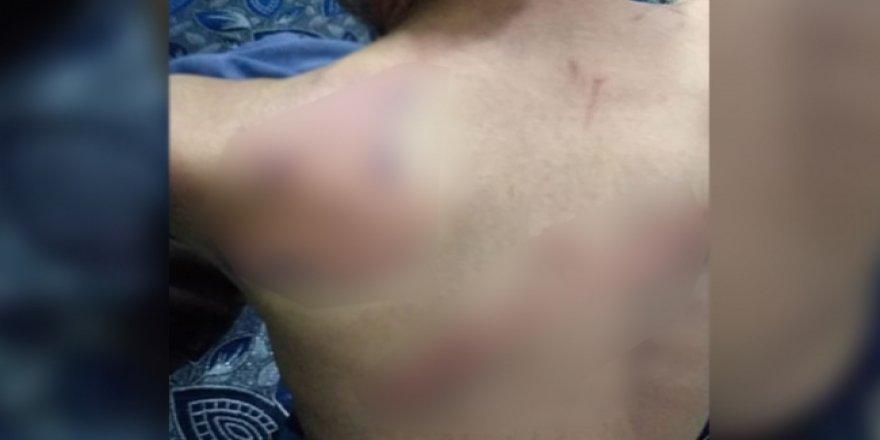 Suriye'de PKK/YPG işkencesi