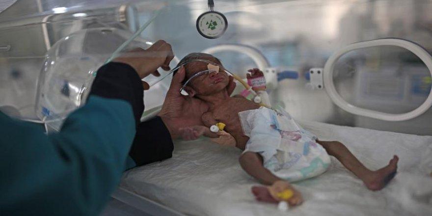 BM: Yemen'de 2 milyondan fazla çocuk açlığın pençesinde