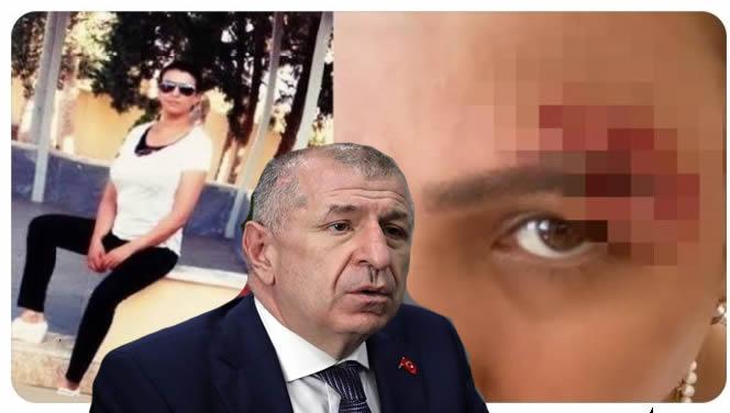 Irkçı Ümit Özdağ'ın partisinin genel başkan yardımcısının yalanı ortaya çıktı