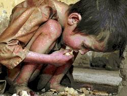 Dünyada Bir Milyar İnsan Aç