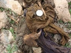 TTB: 'Toplu Mezar ve Ceset Sayısı Çok Daha Fazla'