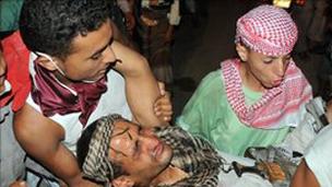 Yemende Oturma Eylemine Baskın: 20 Ölü