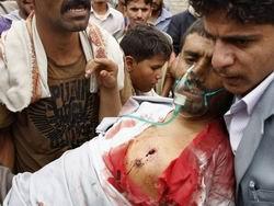 Yemende Olaylar Büyüyor: 50 Ölü