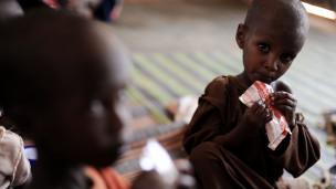 BM: Kuraklık Somalili Çocukları Vuruyor