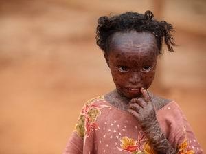 BM, Somalide Açlık Salgını İlan Edecek (FOTO)