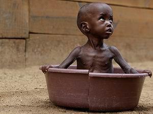 Kıtlık En Çok Somalili Çocukları Vuruyor