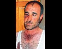 Vanda Gözaltında İşkence Vakası