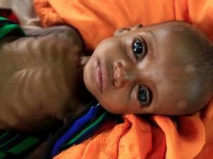 400 Bin Somalili Çocuk Açlıktan Ölebilir