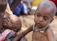 Bir Milyar İnsan Aç, Bir Milyar İse Obez!
