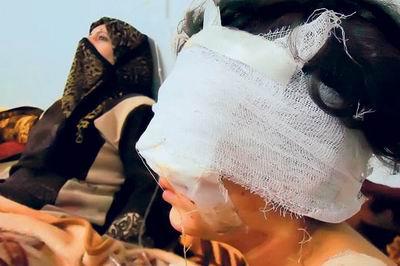 Baas Güçleri Suriye'de Yaralıların da Peşinde