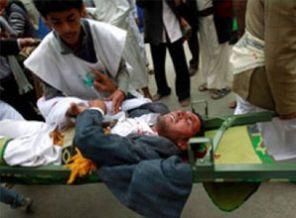 Yemende Bomba Yüklü Araçla Saldırı: 26 Ölü