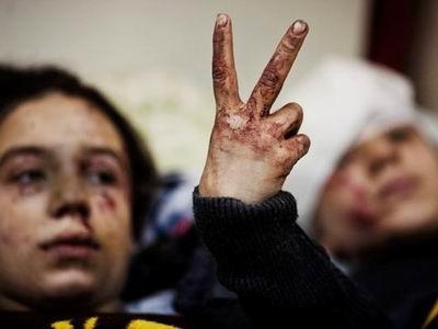 Suriyede Katliam Sürüyor; Direniş de!