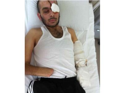 Ellerim ve Gözlerim Özgür Suriyeye Feda Olsun!