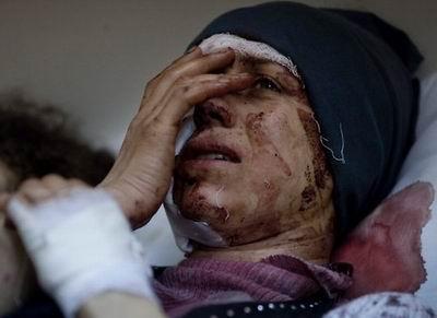Suriyede Son 24 Saatte 31 Kişi Öldürüldü