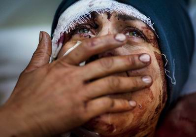 Suriyede Katliam Sürüyor Sessiz Kalma